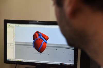 Scientists print world's first 3D heart using patient's own cells