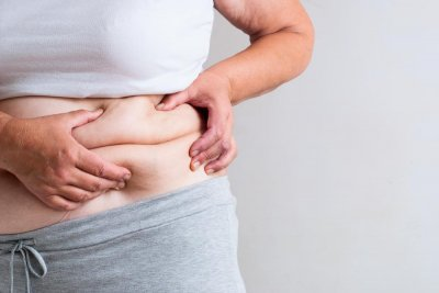 Weight-loss surgery may prevent cancer in at-risk obese women