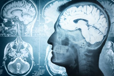 Concussion increases odds for brain conditions, study shows