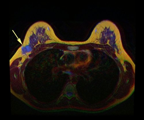 Newer MRI may be more accurate, easier for detection of breast cancer