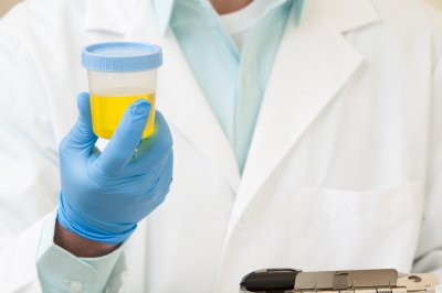 New recommendation could cut costly UTI tests in half, study says