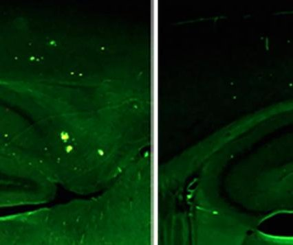 Boosting brain protein alleviates Alzheimer's symptoms, study says