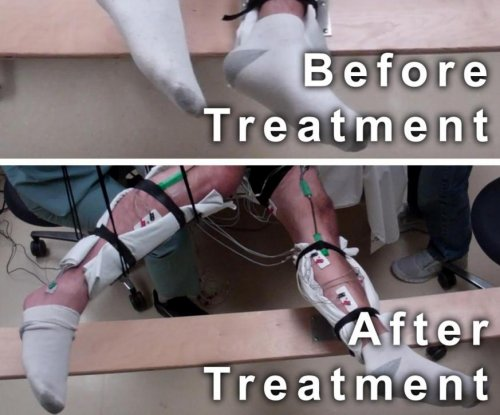 Paralyzed men move legs after noninvasive spinal cord stimulation