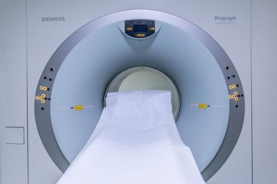 Breast MRI may be too sensitive for some for annual cancer screening