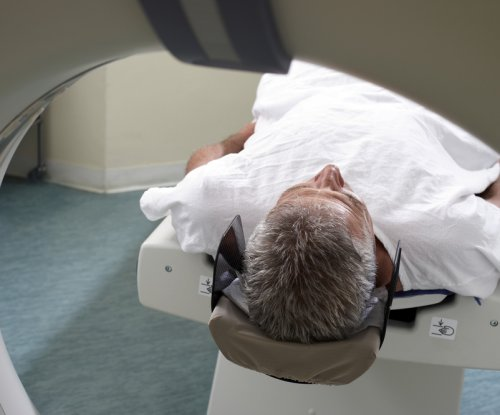 Study: Prostate MRIs better than standard biopsies in cancer detection