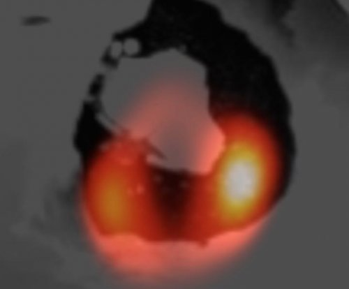 New images reveal lava lake on Jupiter's moon Io
