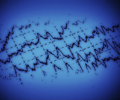 Experimental compounds stop epilepsy progression, not just seizures