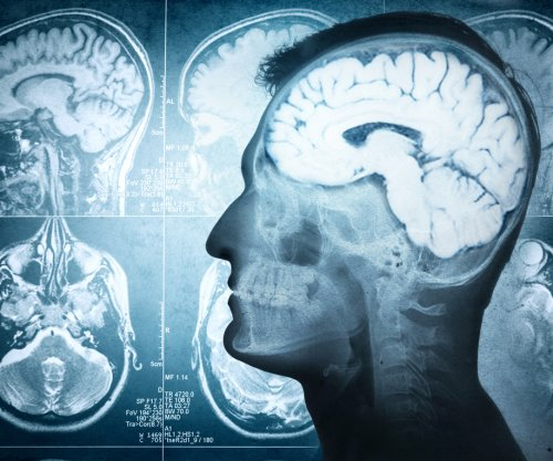 Alzheimer's drug may help traumatic brain injury patients