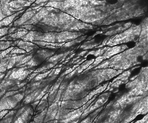 Epilepsy, depression share common genetic cause, study says
