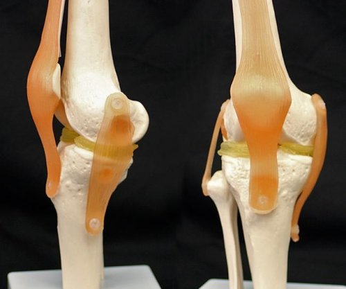 3D-printable knee implants may help damaged knees