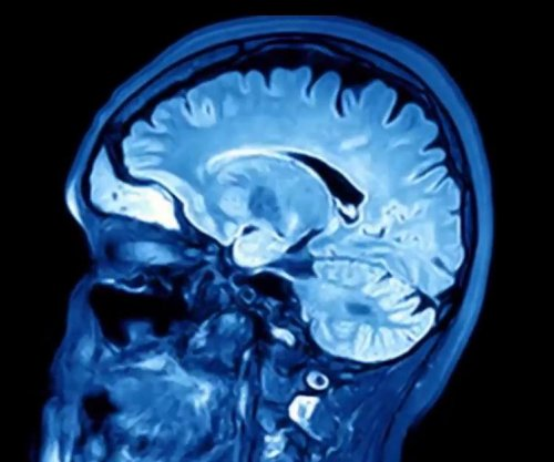 Herpesvirus may contribute to Alzheimer's development