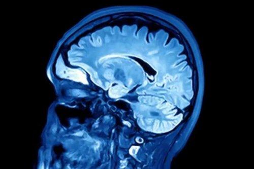 Herpesvirus may contribute to Alzheimer's development
