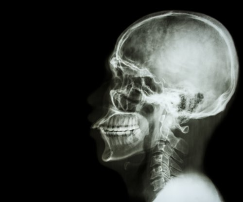New facial bone may someday be grown from patient's rib