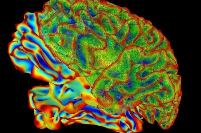 Brain imaging shows memory loss differs by age