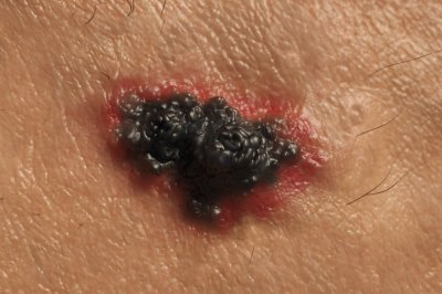 First treatment approved for common form of advanced skin cancer