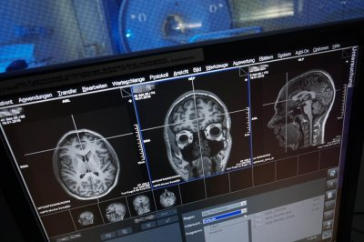 Study: Both sides of the brain process numbers