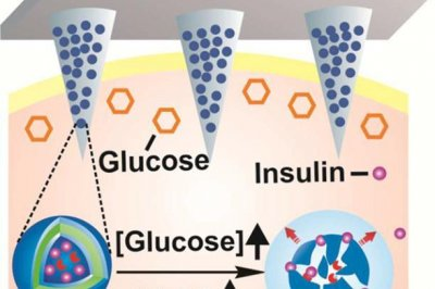 New insulin delivery 'smart' patch shows promise in mouse study