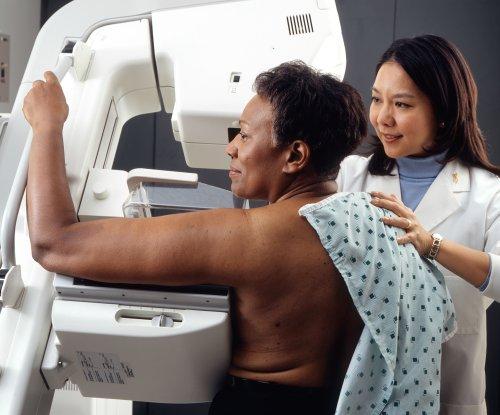 Despite false positives, most patients get future screenings: Study