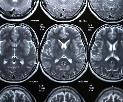 Brain scans predict OCD patients fit for specific treatment