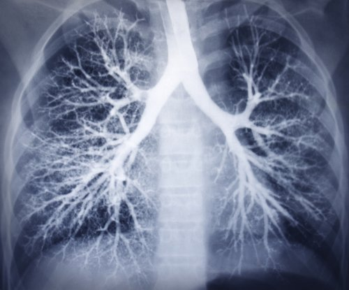 Cancer drug extends life expectancy in clinical trials for patients with lung cancer