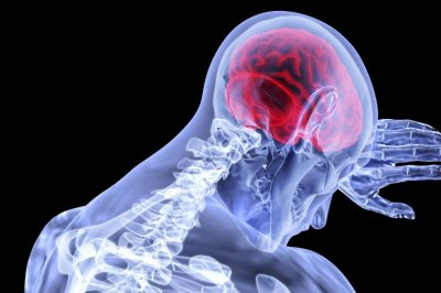 Study: Simple test may help predict recovery after stroke