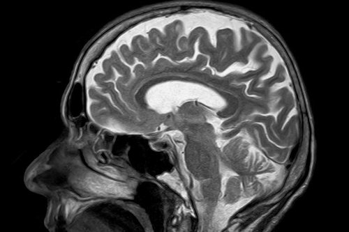 Brain's memory center also key for real-time decision-making