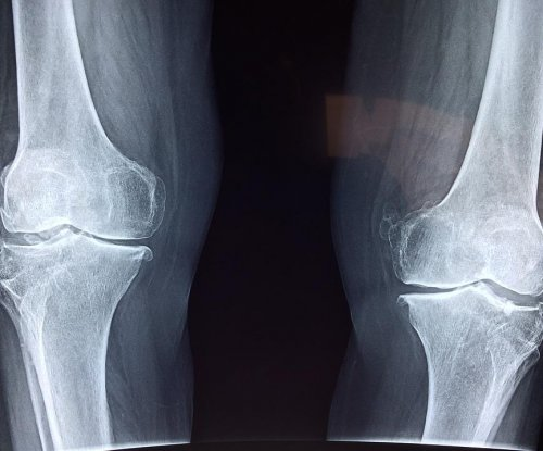 Bone loss in HIV patients linked to early antiretroviral therapy