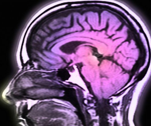 HIV patients now living long enough to develop Alzheimer's