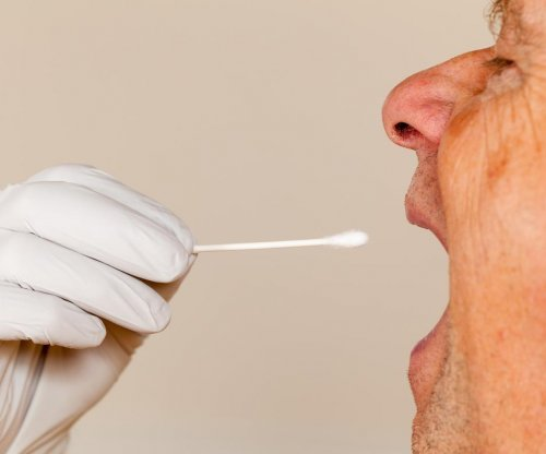 Researchers: Saliva test may reveal Alzheimer's