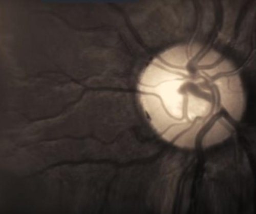 Alzheimer's disease may be detectable using eye exam