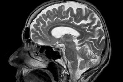 More aggressive surgery may improve brain cancer survival
