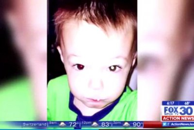 Photo eye glare leads to tumor discovery in Illinois 2-year-old's eye