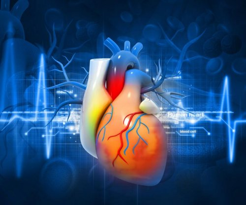 Cholesterol drug fails to prevent heart attack, stroke in trial