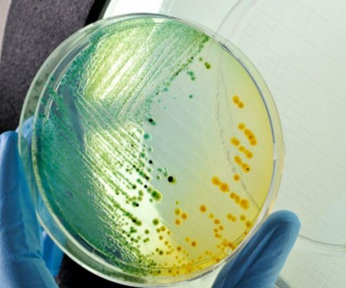 'Superbug' resistant to all antibiotics killed Nevada woman
