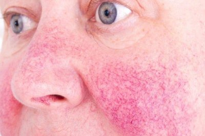 Study: Excess weight may raise risk for rosacea
