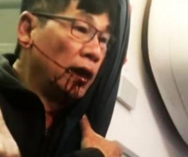 United settles with bloodied passenger, overhauls policies