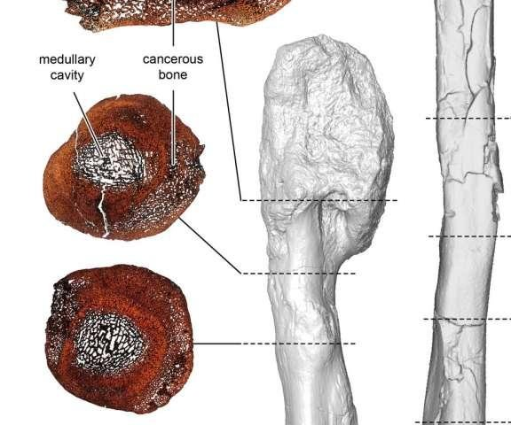 Malignant bone cancer found in ancient dinosaur fossil