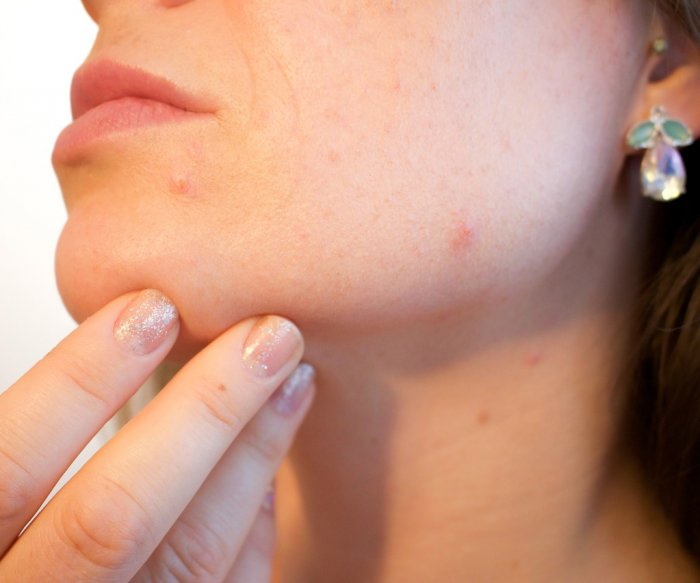 Squeezing pimples could make acne worse