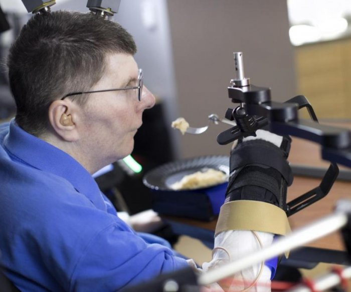Implanted system allows quadriplegic man to use arm, hand