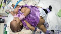 Conjoined twins to be separated in Texas