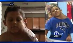 Boy travels from Mexico to have 11-pound neck tumor removed