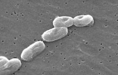 Gut bacteria may reveal colon cancer