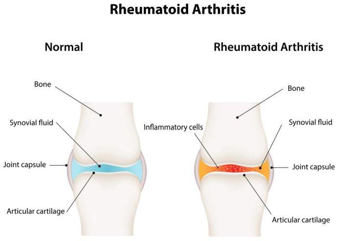 Rheumatoid - Magazine cover