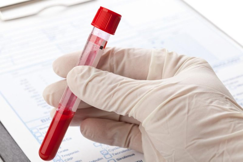 Start=up cancer blood test may be dangerous