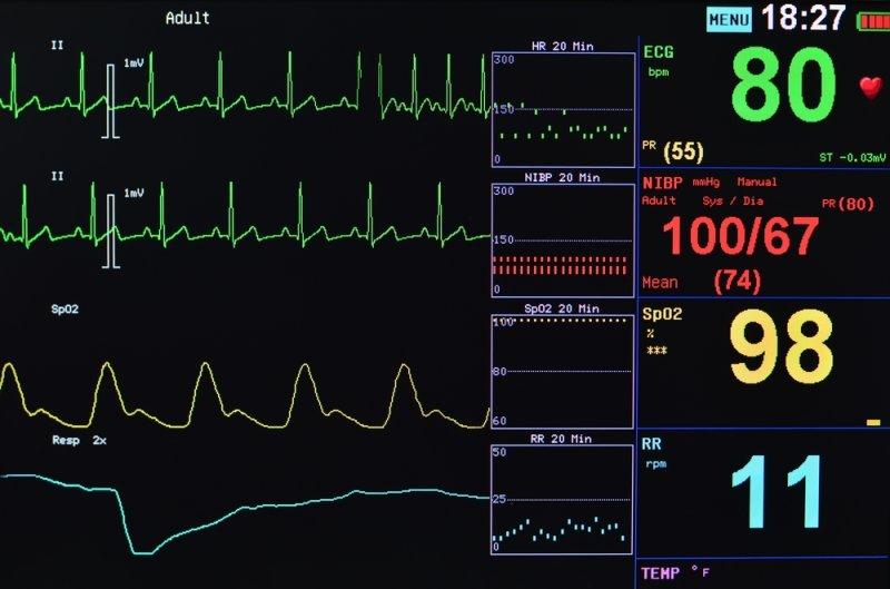 Hospital Monitoring Equipment