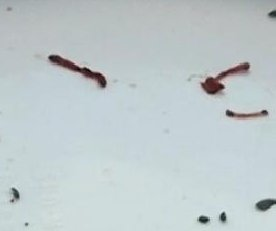 //cdnph.upi.com/sv/em/i/UPI-1981377720370/2013/1/13777235072632/Colcord-red-worms-threaten-water-supply.jpg