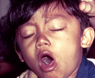 http://cdnph.upi.com/sv/em/i/UPI-3511402760424/2014/1/13971755496822/Whooping-cough-declared-an-epidemic-in-California.jpg