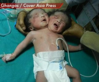 //cdnph.upi.com/sv/em/i/UPI-4371394802123/2014/1/13948050876491/Woman-gives-birth-to-conjoined-twins-with-one-body-two-heads.jpg