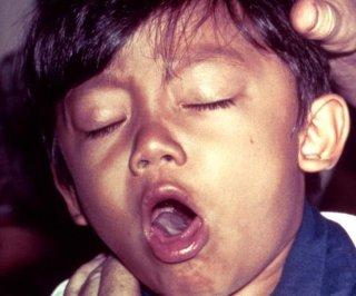 http://cdnph.upi.com/sv/em/i/UPI-4721399030196/2014/1/13971755496822/Whooping-cough-still-a-problem-in-San-Diego.jpg