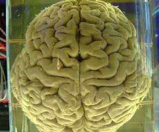 http://cdnph.upi.com/sv/em/i/UPI-7861388681515/2014/1/13886821307933/Indianapolis-man-charged-with-stealing-brains-from-museum-and-selling-them-on-eBay.jpg